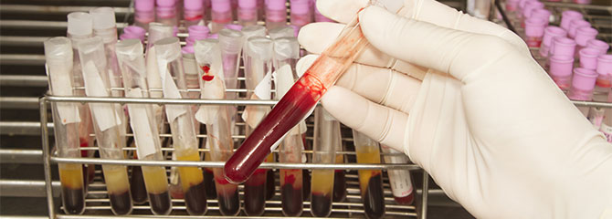 a report on hemophilia a bleeding disorder Congenital hemophilia is an inherited bleeding disorder characterized by an absent or reduced level of clotting factor viii (8) or factor ix (9).